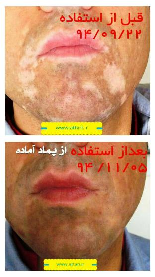 تصاویر درمان برص; پیسی; لک و پیس; Vitiligo